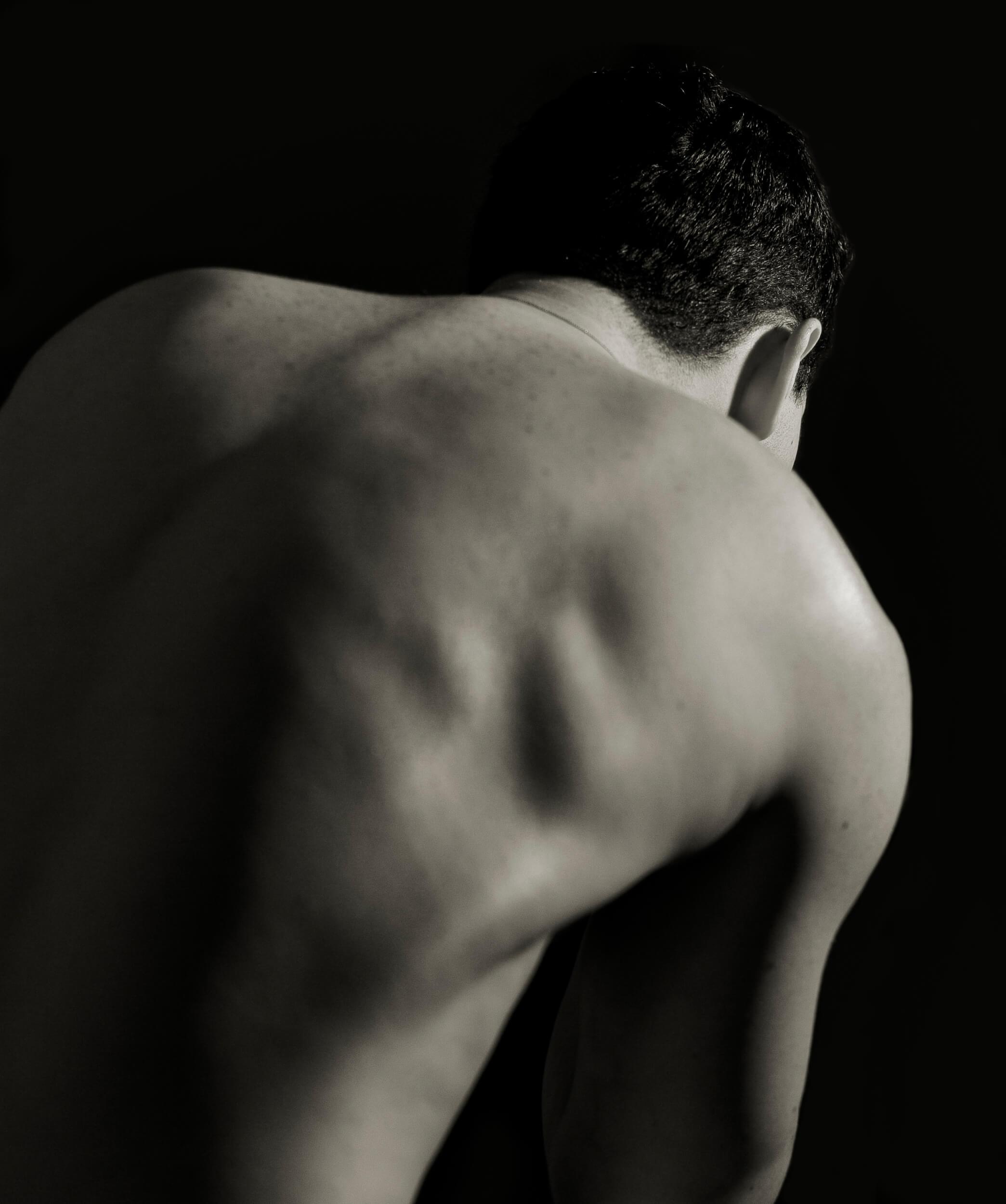 gekrümmter Rücken als Anzeichen von Skoliose (c) Sergej23 / pixelio.de