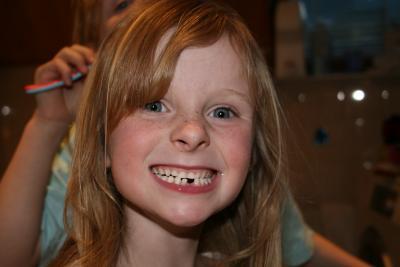 Kind mit Zahnlücke (c) Hilde Vogtländer / pixelio.de
