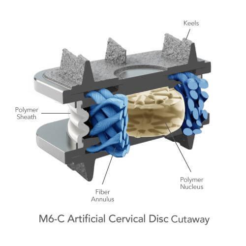 Die M6 Bandscheibenprothese überzeugt mit ihrer eleganten Biomechanik (c) spinalkinetics.com