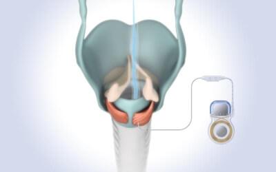 Durch den Impuls des Implantats wird einer der Öffnermuskeln aktiviert, eines der beiden Stimmbänder gleitet zu Seite und der Atemstrom (blaue Linie) kann passieren (c) MED-EL - Medical Electronics / ukw.de